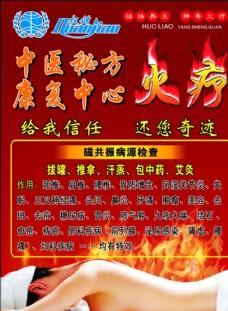 火疗宣传单